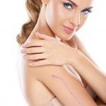 chirurgiczne usuwanie blizn zabieg