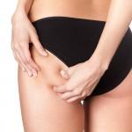 zabieg odsysanie tłuszczu liposukcja - lipo